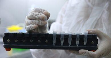 За сутки в Беларуси зарегистрированы 398 пациентов с COVID-19, выписаны 215